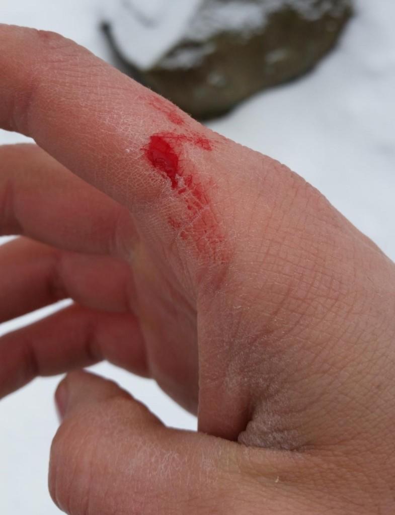 rough finger